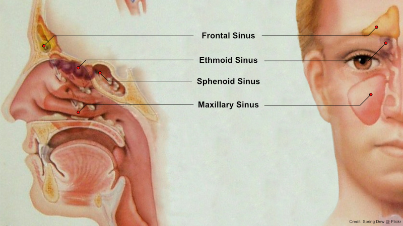 Rongga Sinus